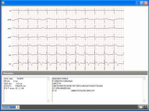 Figura 3: Visualización de ECG en Ginkgo CADx